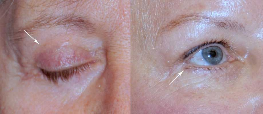 Illustration of eyelid scar for blepharoplasty
