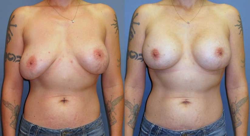 Before and After: Subglandular implants on the left. Implant exchange with pocket revision and change to a submuscular position on the right.