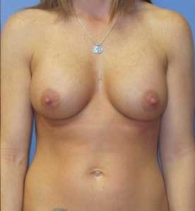 breast-augmentation-compare-1