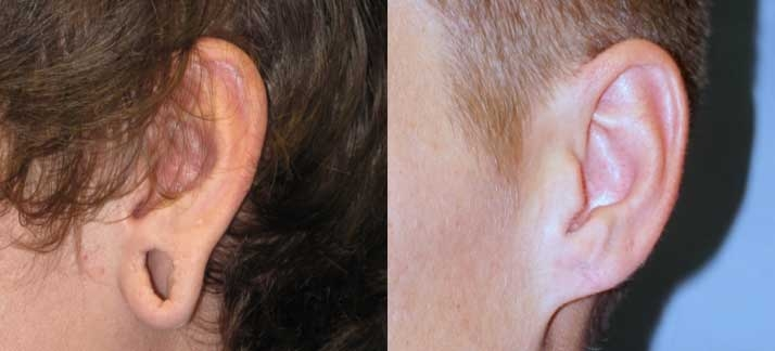 Before and after photos of Ear Surgery