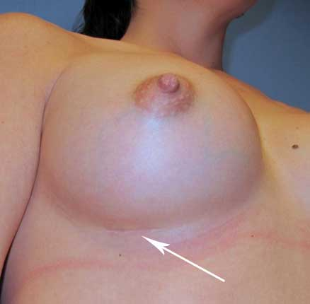 Breast implant placement, scar location along the breast crease